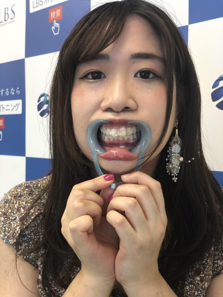 ジェルを歯に塗ったミクニシオリ