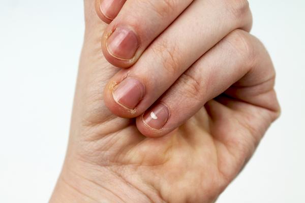 亜鉛不足の爪