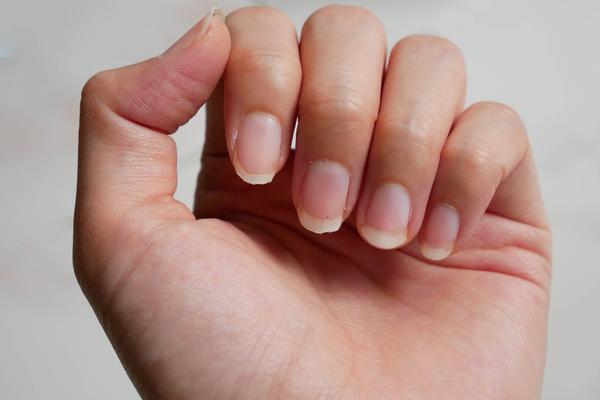 手の平を丸めて爪を見せる