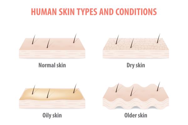 それぞれ肌のタイプの図